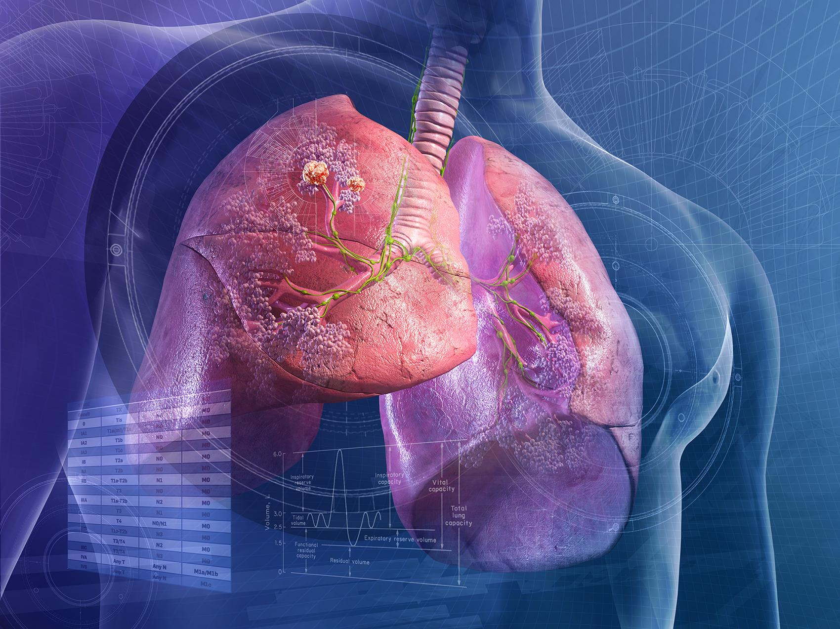 Akciğer Görsel